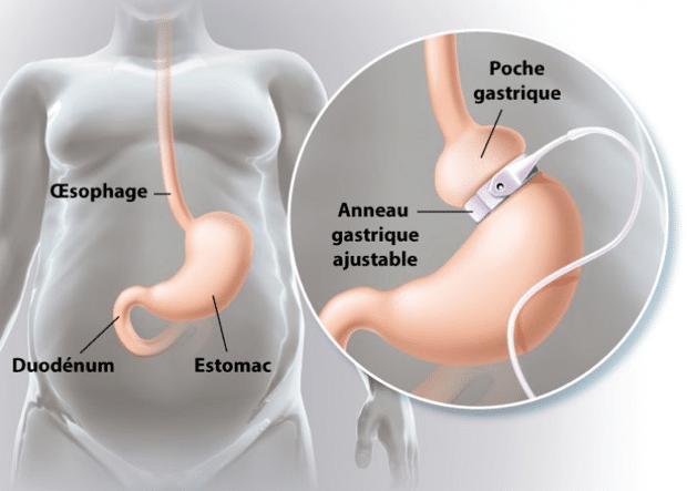 chirurgie bariatrique anneau gastrique